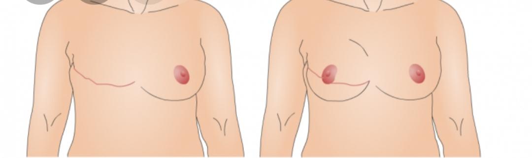 جراحة إعادة بناء الثدي   كيفية القيام بعملية ترميم الثدي   المركز الطبي التركي   Turk Health
